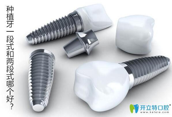 种植牙一段式和两段式哪个好