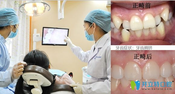 深圳世纪河山牙齿拥挤矫正前后效果图