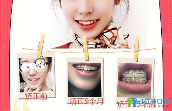 广州圣贝口腔半隐形陶瓷托槽牙齿矫正案例