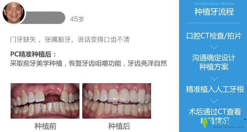 深圳岚世纪口腔种植牙案例