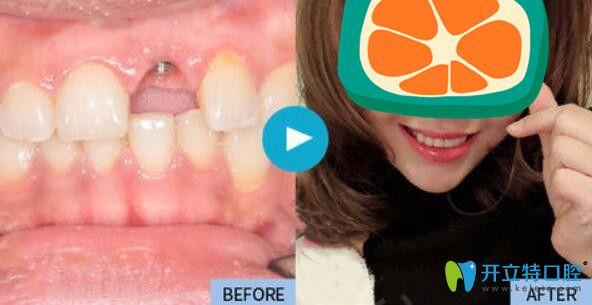 昆明种牙哪家好?来看雅度口腔单颗牙齿种植案例