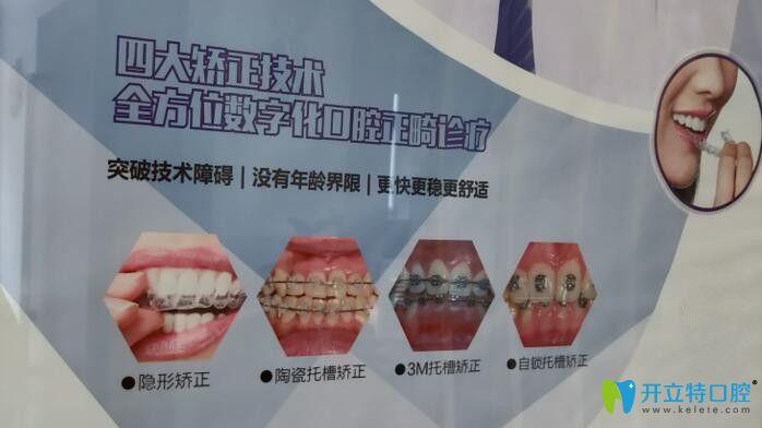 广州圣贝口腔四大矫正技术