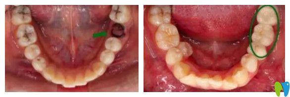 昆明雅度口腔单颗种植牙案例
