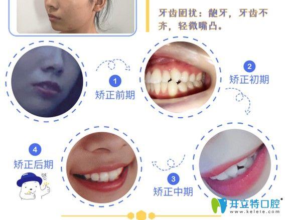 格伦菲尔正畸过程牙齿变化图