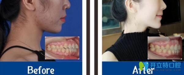雅度口腔牙齿矫正案例前后效果对比照片