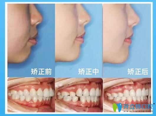 郑州拜博口腔隐形牙齿矫正案例