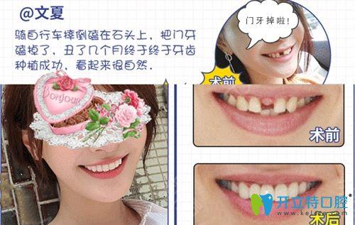 成都博爱口腔门牙种植案例效果图