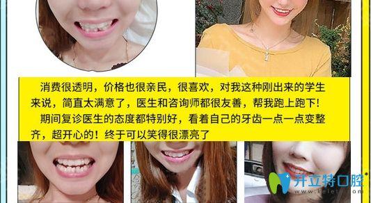 成都博爱牙科隐形牙套牙齿矫正前后效果图