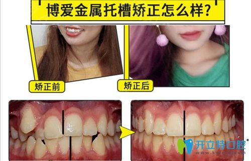成都博爱口腔金属托槽牙齿矫正效果图