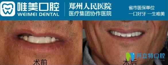 郑州唯美50岁老人3D数字化半口种植牙效果图