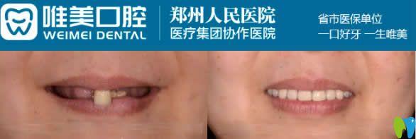 郑州唯美口腔60岁老人全口即刻种植牙案例图