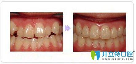 广州致美口腔金属托槽牙齿矫正前后对比图