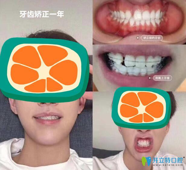 小哥哥在顺德壹加壹做半隐形陶瓷矫正中牙齿变化过程图