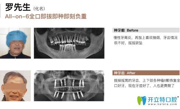 苏州牙博士口腔allon6种植牙真实案例,附allon6全口种植牙价格
