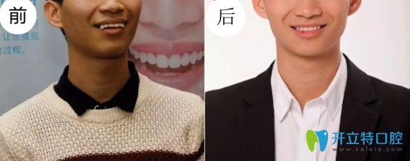 佛山君美口腔提醒牙齿矫正对外貌影响很大