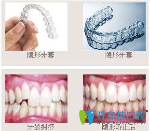 广州致美口腔隐形牙齿矫正前后图