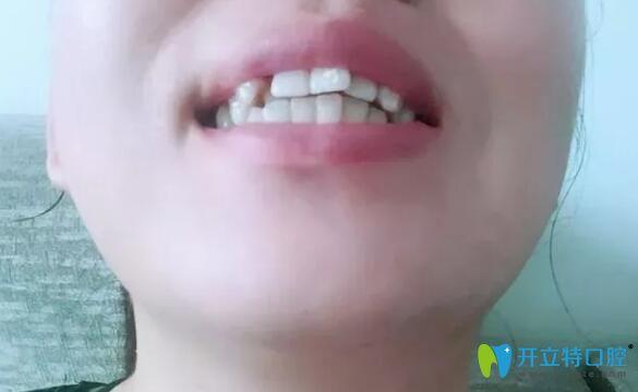 牙齿拥挤不齐在南昌同济口腔做了金属托槽矫正,目前收缝中