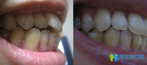 这是我在佛山君美口腔做时代天使隐形牙齿矫正的前后效果