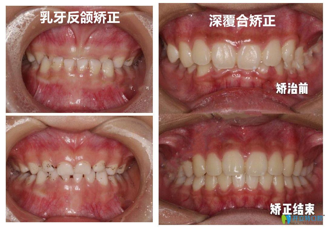 深圳美莱口腔韩旭医生做牙齿矫正怎么样?有案例为证哦