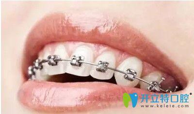 深圳诺德齿科金属托槽牙齿矫正