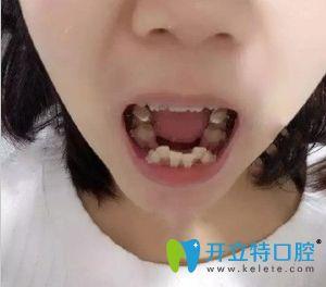 顺德壹加壹口腔陶瓷托槽矫正龅牙术中照