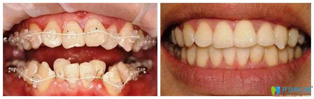 南昌同济口腔牙齿拥挤不齐矫正案例对比照片
