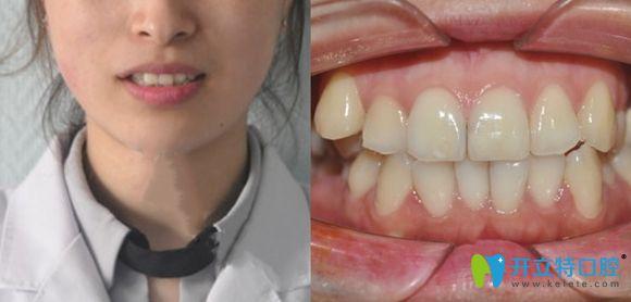 济南正畸哪家医院好?韩氏医院口腔科金属牙齿矫正就很赞!