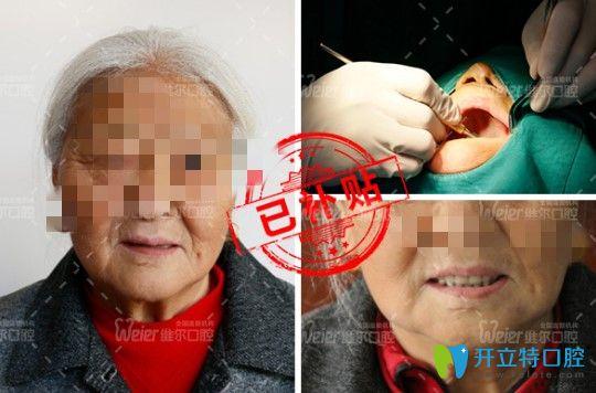 北京维尔口腔一日得种植牙案例