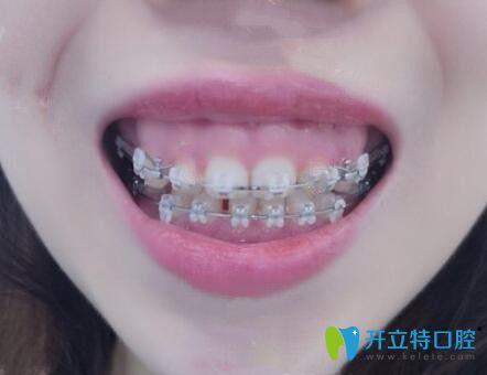 我露龈笑28岁在中山贝贝口腔做了半隐形陶瓷托槽牙齿矫正