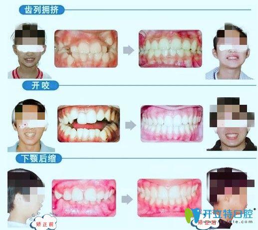 长沙中诺口腔青少年牙齿矫正案例