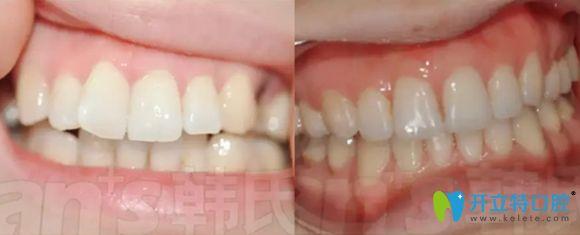 济南韩氏口腔牙性龅牙矫正效果对比图