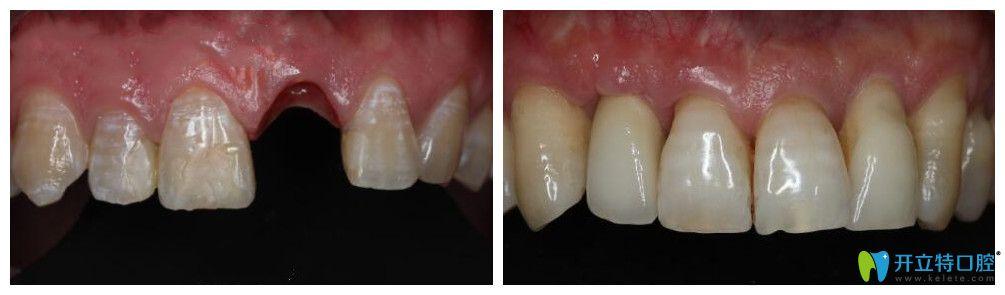 义乌哪里做种植牙好?公布傅氏口腔前牙美学种植案例前后效果对比图