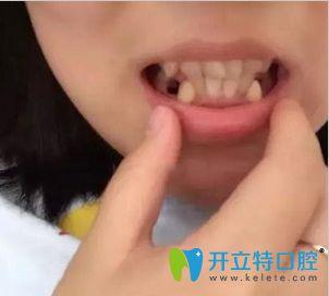 顺德矫正牙齿哪个医院好呢?壹加壹口腔龅牙正畸效果供参考