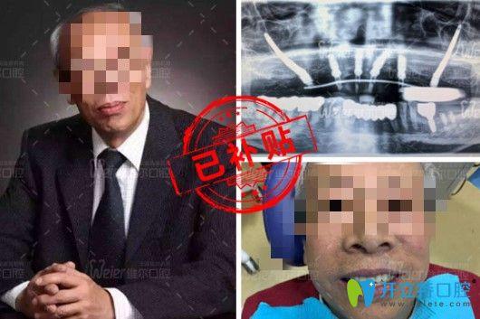 北京维尔口腔穿颧种植修复半口缺失牙