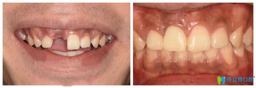 南昌同济口腔前牙美学种植案例前后效果对比