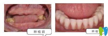 昆明雅度口腔顾客种植牙前后图