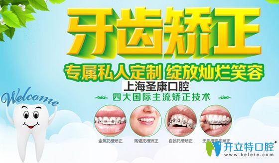 上海圣康口腔暑期牙齿矫正宣传图