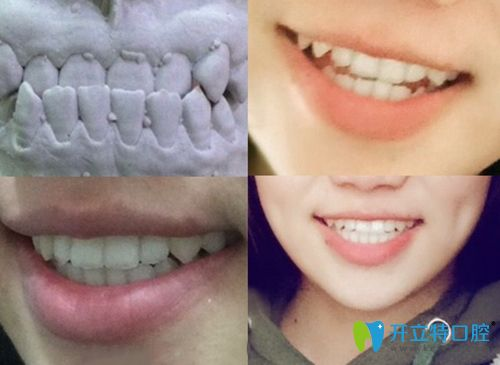 上海圣康口腔牙齿矫正前后效果对比图