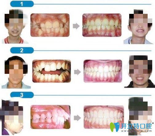 北京维尔口腔龅牙矫正案例图