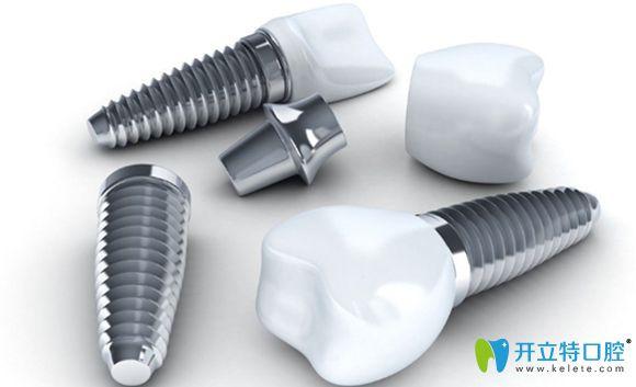 十大世界种植牙品牌排行