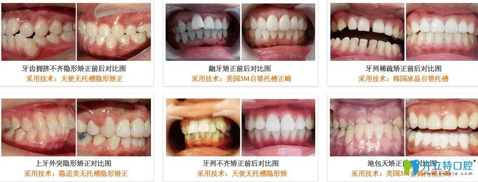东莞利尔口腔牙齿矫正案例前后效果对比图