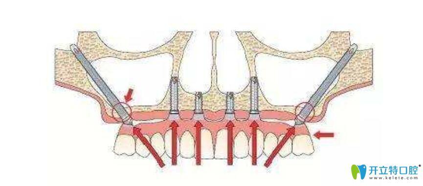 东莞利尔口腔可以做穿颧穿翼种植