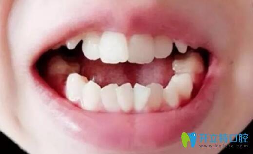 杭州牙齿矫正哪个医院好?参考我在雅舒口腔做拔牙正畸效果