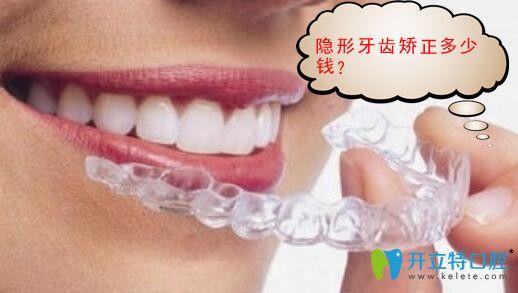 隐形矫正牙齿多少钱?时代天使价格17000元矫正效果好吗?