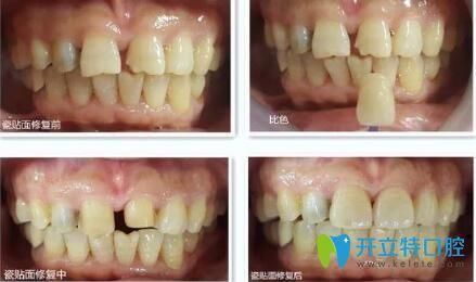 瑾帆口腔牙齿瓷贴面修复案例