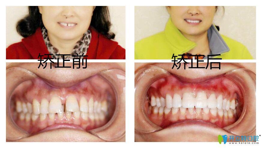 南昌辉煌口腔隐形牙齿矫正案例
