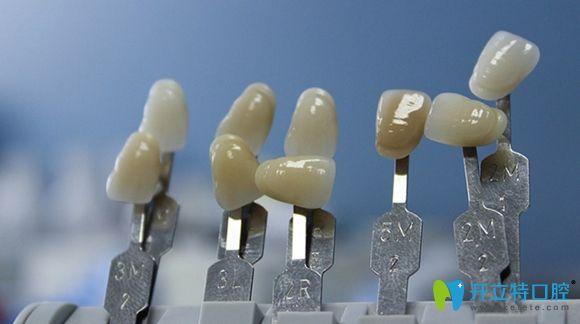 本文汇总了水晶锆全瓷牙的优缺点和价格及使用寿命