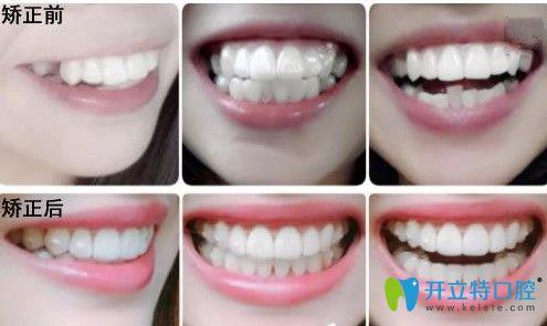 广州圣贝口腔牙齿不齐矫正案例