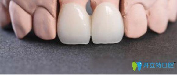 水晶锆全瓷牙价格一般在2000元到4000元