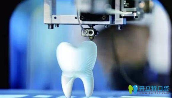 国内数字化3d打印导板种植牙已上线,种1颗牙仅用10分钟!
